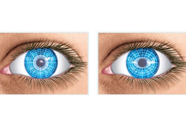 Què és la miopia la hipermetropia i l'astigmatisme